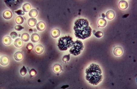 Pasteuria ramosa spores By Dieter Ebert, Basel, Switzerland (Own work) [CC BY-SA 4.0 (http://creativecommons.org/licenses/by-sa/4.0)], via Wikimedia Commons